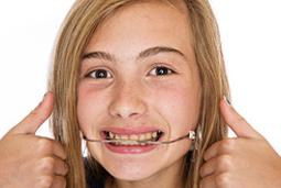2aparat-ortodontyczny-head-gear-Varsovia-Dental-Warszawa