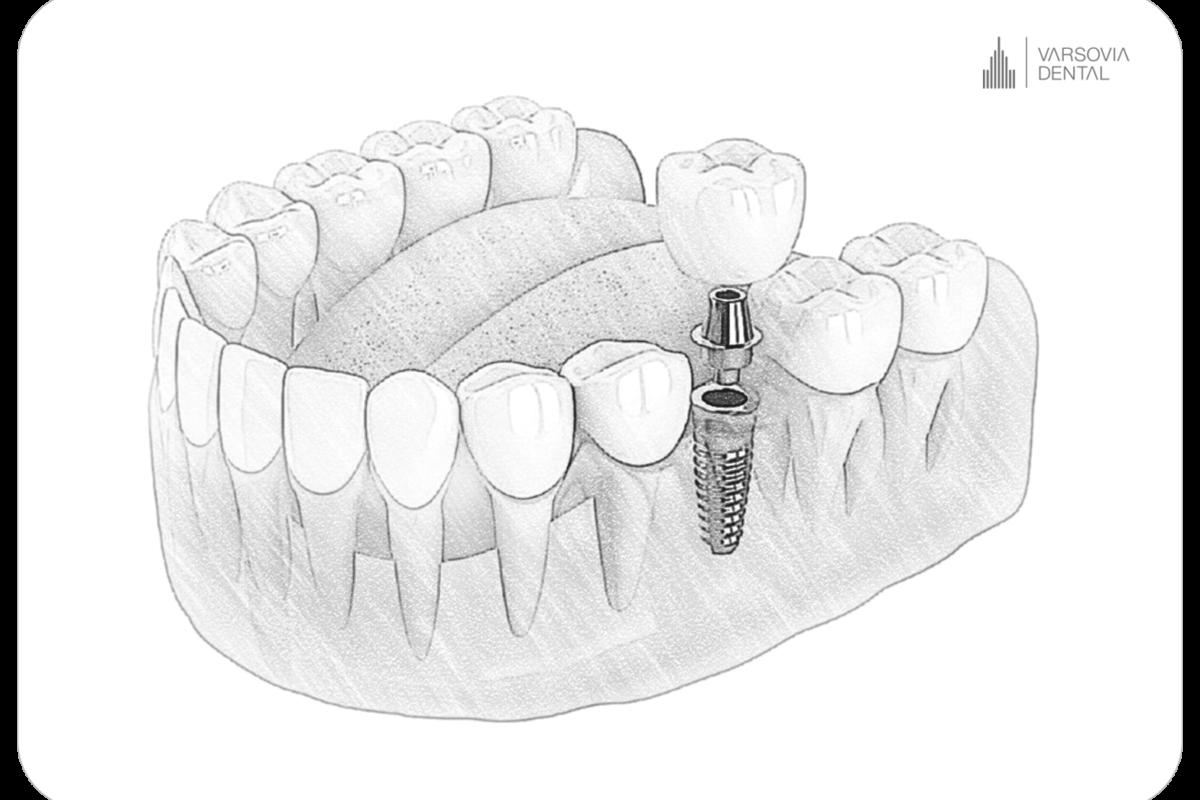 implanty-zebow