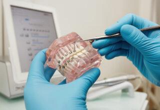 naprawa-aparatu-ortodontycznego