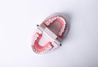 Naprawa protez zębowych