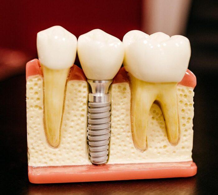 Implanty zębów Warszawa